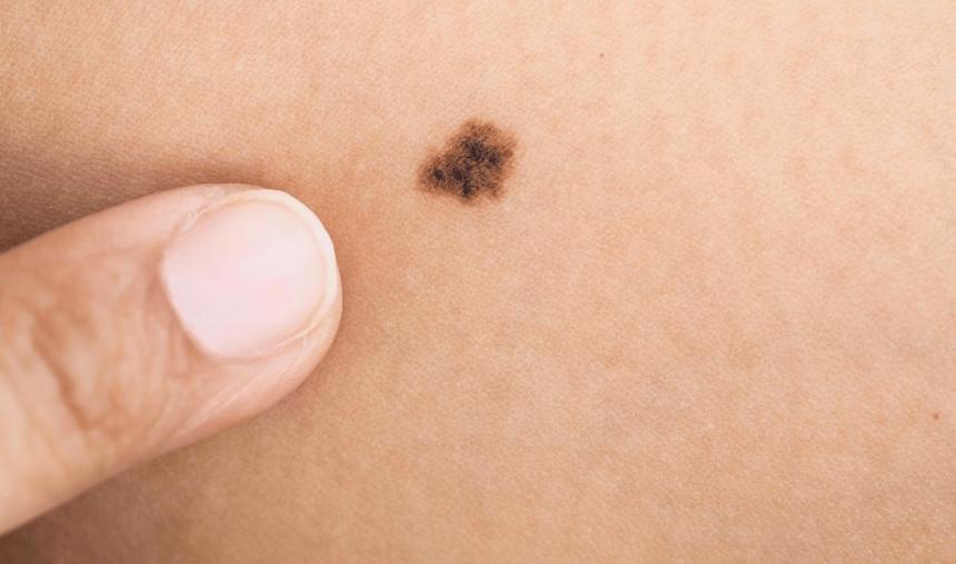 Saiba mais sobre o melanoma: o mais agressivo dos cânceres de pele