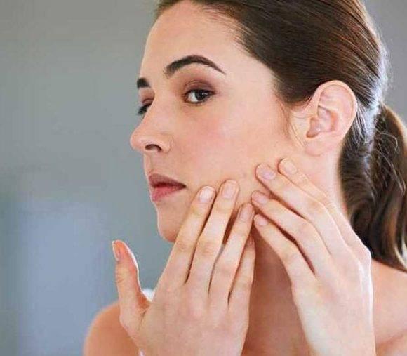 Tudo o que você precisa saber sobre acne na mulher adulta