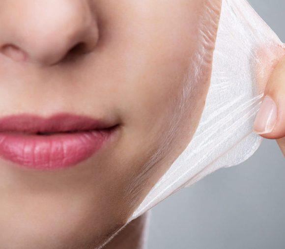 Peelings químicos faciais e corporais. Saiba mais sobre eles