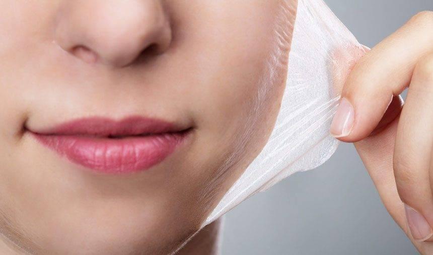 Saiba mais sobre os peelings químicos faciais e corporais e seus benefícios