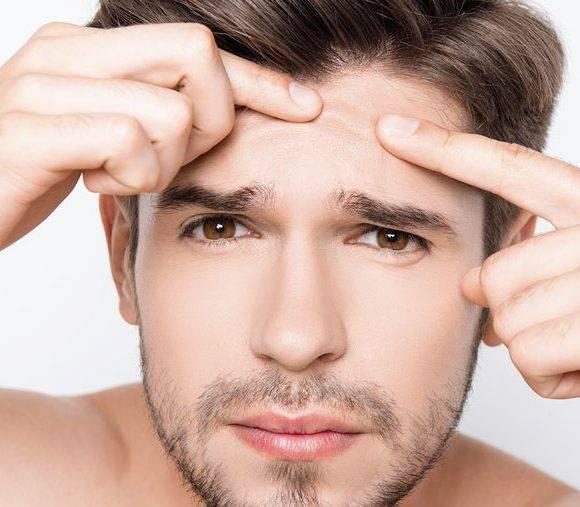 Acne? Veja os tratamentos indicados para as cicatrizes
