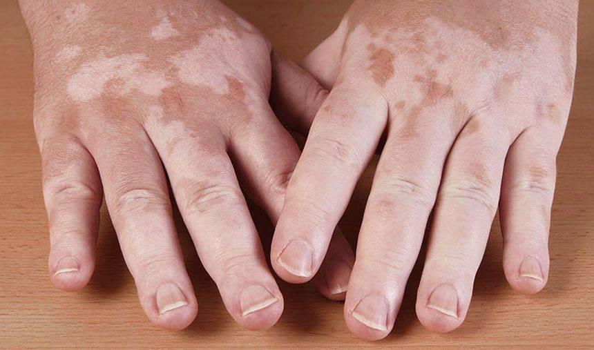 Vitiligo: saiba mais sobre ele